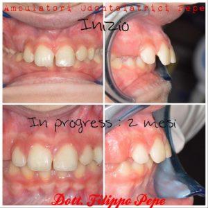 Ortodonzia intercettiva nel bambino