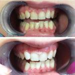 odontoiatria estetica 4